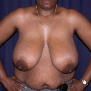Before Photo - Breast Reduction - Case #2549 - Bilateral Breast Reduction - Frontal View