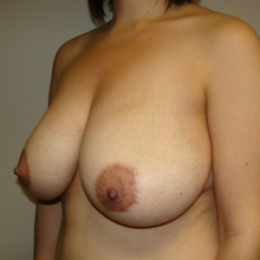 Before Photo - Breast Reduction - Case #2776 - Lateral View