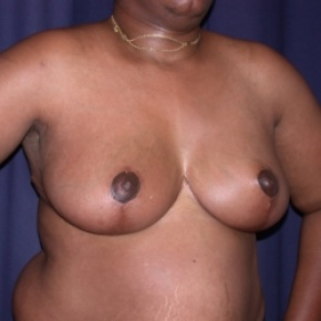 After Photo - Breast Reduction - Case #2549 - Bilateral Breast Reduction - Oblique View