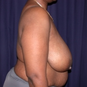 Before Photo - Breast Reduction - Case #2549 - Bilateral Breast Reduction - Lateral View