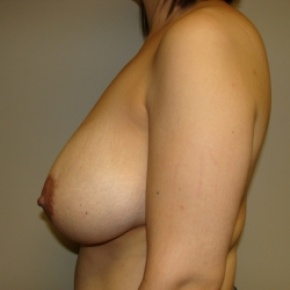 Before Photo - Breast Reduction - Case #2776 - Posterior View