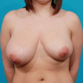 Before Photo - Breast Reduction - Case #2487 - Asymmetric Breast Reduction - Frontal View