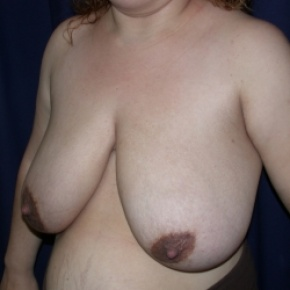 Before Photo - Breast Reduction - Case #2737 - Bilateral Breast Reduction - Oblique View