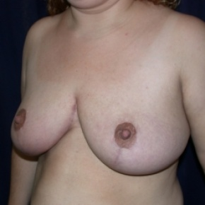 After Photo - Breast Reduction - Case #2737 - Bilateral Breast Reduction - Oblique View