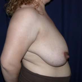 Before Photo - Breast Reduction - Case #2737 - Bilateral Breast Reduction - Lateral View