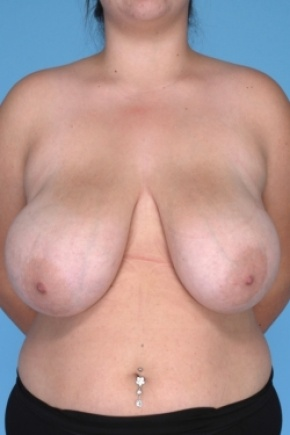 Before Photo - Breast Reduction - Case #2916 - Frontal View