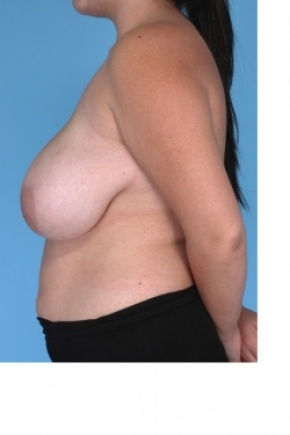 Before Photo - Breast Reduction - Case #2916 - Lateral View