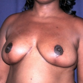 After Photo - Breast Reduction - Case #2517 - Bilateral Breast Reduction - Posterior Oblique View
