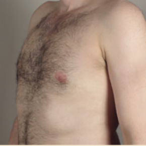 After Photo - Gynecomastia - Case #2932 - Gynecomastia New Jersey - Lateral View