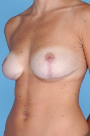 After Photo - Breast Reduction - Case #2918 - Oblique View