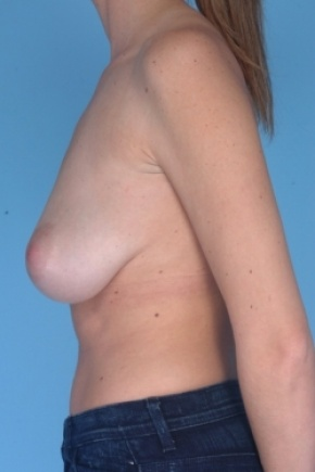 Before Photo - Breast Reduction - Case #2918 - Lateral View