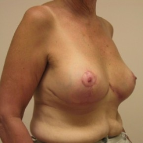After Photo - Breast Reduction - Case #3441 - Oblique View