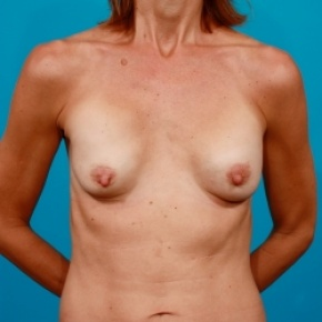 Before Photo - Breast Revision - Case #2483 - Capsular Contracture Revision Breast Augmentation - Frontal View