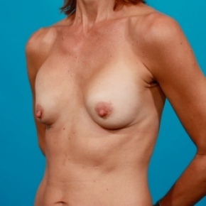 Before Photo - Breast Revision - Case #2483 - Capsular Contracture Revision Breast Augmentation - Oblique View