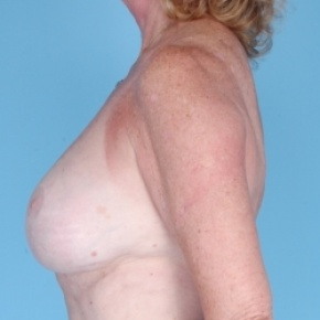After Photo - Breast Revision - Case #2705 - Breast Augmentation  - Lateral View