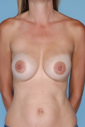 Before Photo - Breast Revision - Case #2919 - Frontal View
