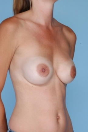 Before Photo - Breast Revision - Case #2919 - Oblique View