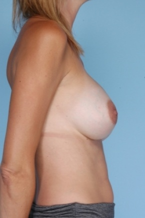 After Photo - Breast Revision - Case #2919 - Lateral View