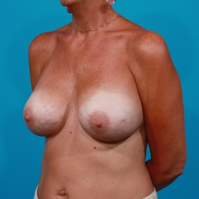 After Photo - Breast Revision - Case #2953 - Left Capsular Contracture, Right Saline Deflation - Oblique View