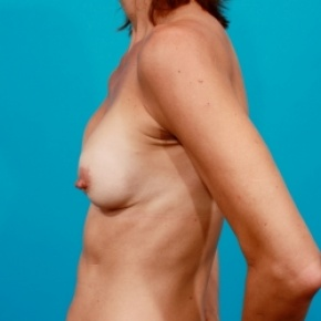 Before Photo - Breast Revision - Case #2483 - Capsular Contracture Revision Breast Augmentation - Lateral View