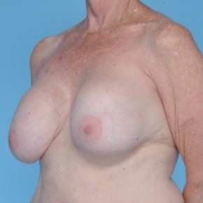 Before Photo - Breast Revision - Case #2705 - Breast Augmentation  - Oblique View