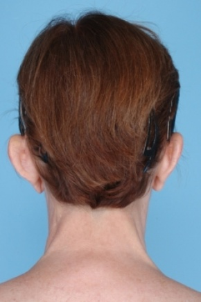 Before Photo - Ear Surgery - Case #2674 - Posterior View