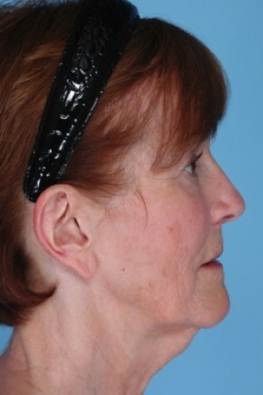 Before Photo - Ear Surgery - Case #2912 - Otoplasty with Earlobe Reduction - Lateral View