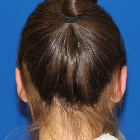 After Photo - Ear Surgery - Case #2773 - Otoplasty Ear surgery - Posterior View