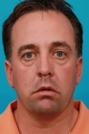 Before Photo - Eyelid Surgery - Case #2571 - Lower Blepharoplasty - Frontal View