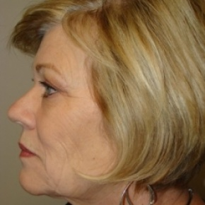 Before Photo - Eyelid Surgery - Case #2583 - Upper and lower Eyelid Surgery - Posterior Oblique View