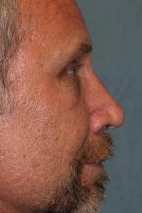 After Photo - Eyelid Surgery - Case #3453 - Lateral View