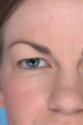 Before Photo - Eyelid Surgery - Case #2913 - Upper Blepharoplasty - Frontal View