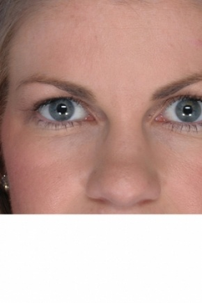 After Photo - Eyelid Surgery - Case #2913 - Upper Blepharoplasty - Frontal View
