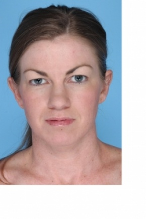 Before Photo - Eyelid Surgery - Case #2913 - Upper Blepharoplasty - Posterior View