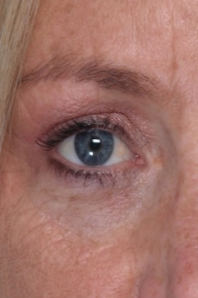 After Photo - Eyelid Surgery - Case #2914 - Eyelid - Worm's Eye View