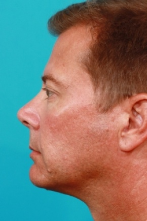 After Photo - Eyelid Surgery - Case #2527 - Lower Blepharoplasty - Lateral View