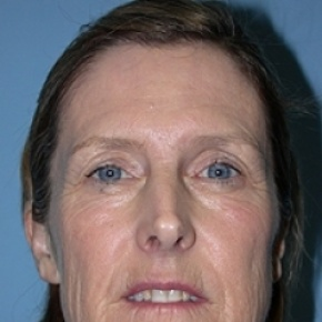 Before Photo - Facelift - Case #2626 - Frontal View