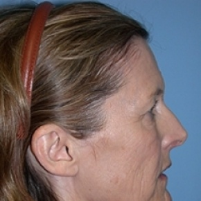 Before Photo - Facelift - Case #2626 - Oblique View