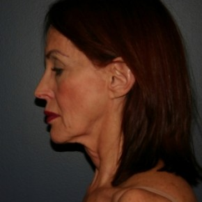 Before Photo - Facelift - Case #3426 - Lateral View