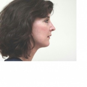 After Photo - Facelift - Case #3427 - Oblique View