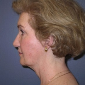 After Photo - Facelift - Case #3430 - Lateral View