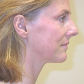 Before Photo - Facelift - Case #3432 - Facelift and Rhinoplasty - Oblique View