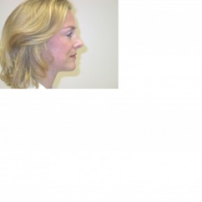 After Photo - Facelift - Case #3432 - Facelift and Rhinoplasty - Oblique View
