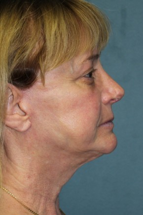 After Photo - Facelift - Case #3436 - Lateral View