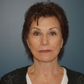 After Photo - Facelift - Case #3440 - Frontal View