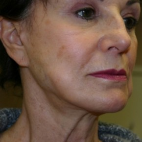 Before Photo - Facelift - Case #3440 - Lateral View