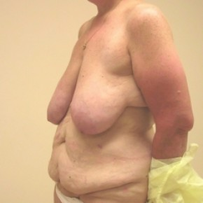Before Photo - Plastic Surgery After Dramatic Weight Loss - Case #3447 - Body Lift, Breast Reduction - Oblique View