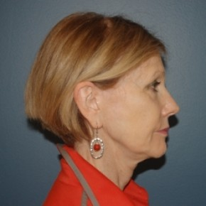 Before Photo - Facelift - Case #3470 - Facelift and Eyelid surgery - Oblique View