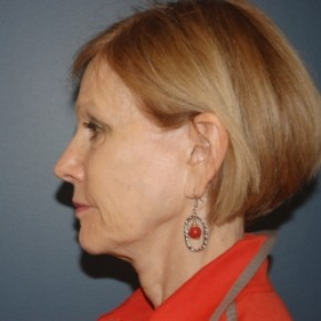 Before Photo - Facelift - Case #3470 - Facelift and Eyelid surgery - Lateral View