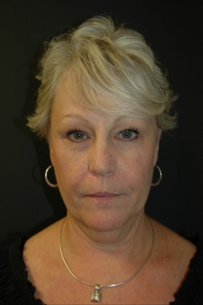 Before Photo - Facial Rejuvenation - Case #3484 - Facelift, Fat Transfer, Lower Blepharoplasty - Frontal View